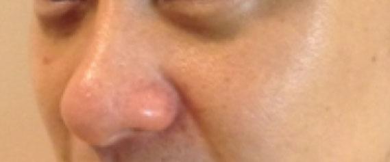 Nose-Fillers-oc5
