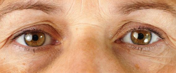 eyelift-1-oc