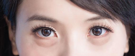 eyelift-2-oc