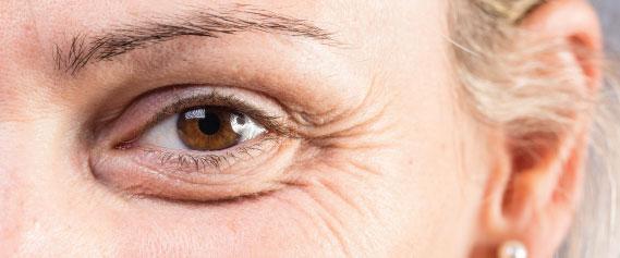 eyelift-3-oc
