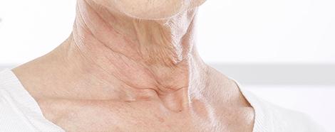 neck-wrinkles-hifu-singapore