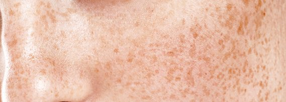pigmentation-removal-singapore-laser-skin-clinic-aesthetic-clinic