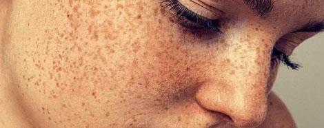 PRO-YELLOW-LASER-aestheties-treatment-singapore-pigmentation-oc2