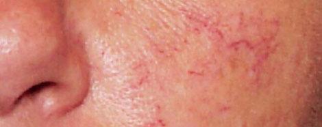 PRO-YELLOW-LASER-aestheties-treatment-singapore-rosacea-skin-oc2