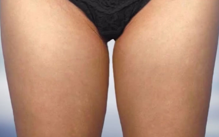 coolsculpting-aestheties-treatment-singapore-clinic-thighs-oc1