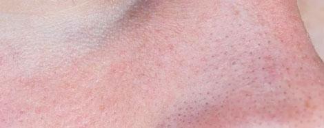 cryofacial-aestheties-treatment-singapore-inflammation-face-oc1