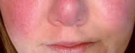 cryofacial-aestheties-treatment-singapore-redness-face-oc1