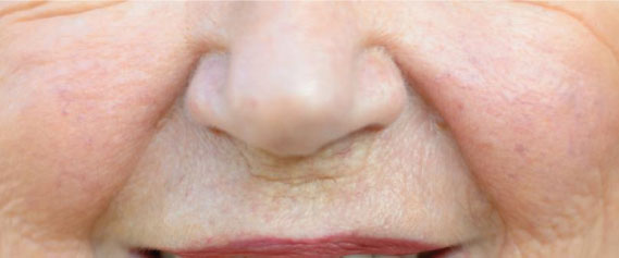 face-fillers-aesthetics-treatment-singapore-clinic-laugh-line-oc1