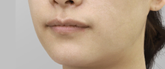 face-threadlift-aestheties-treatment-singapore-clinic-oc2