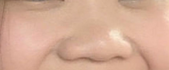 nose-threadlift-aestheties-treatment-singapore-clinic-oc2