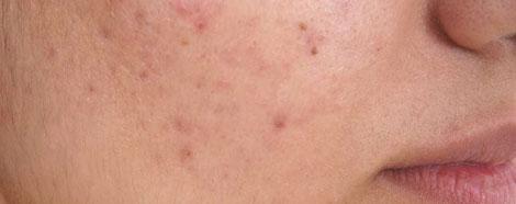 onlipulse-aestheties-treatment-singapore-Blemishes-oc1