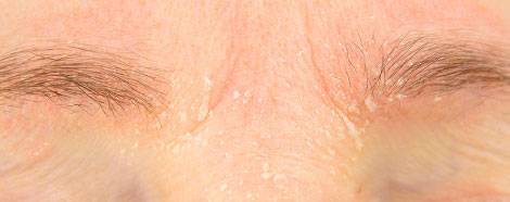rejuran-hb-aestheties-treatment-singapore-dry-skin-oc1