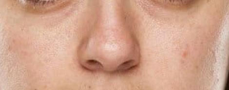 rejuran-hb-aestheties-treatment-singapore-dull-skin-oc1