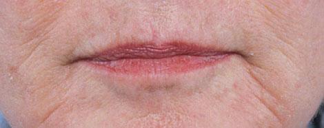 rejuran-hb-aestheties-treatment-singapore-wrinkled-skin-oc1