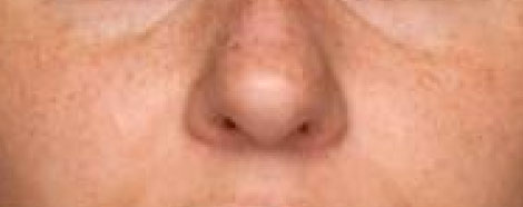 rejuran-healer-aestheties-treatment-singapore-skin-Brightening-oc1