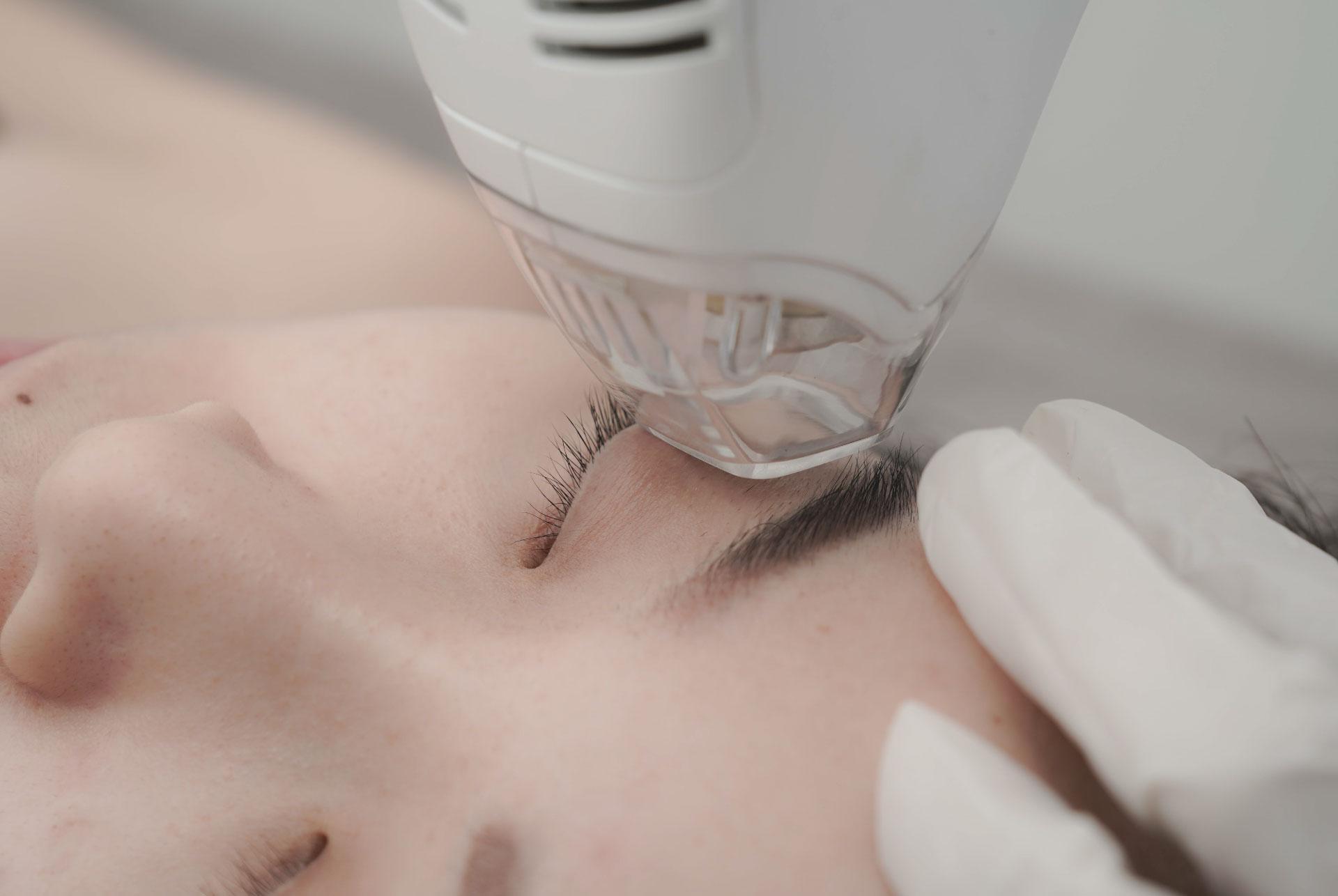 tma-eyelifting-aestheties-treatment-singapore-clinic-oc2