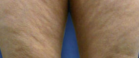 zerona-aestheties-treatment-singapore-clinic-fato-c1