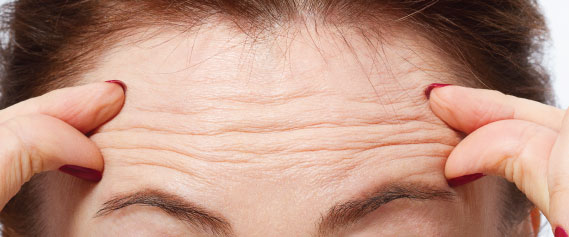 botox-aesthetics-treatment-singapore-clinic-oc4-1.jpg