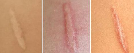 onlifreez-aestheties-treatment-singapore-clinic-pigmentation-skin-tag-scar-removal-oc4-2.jpg