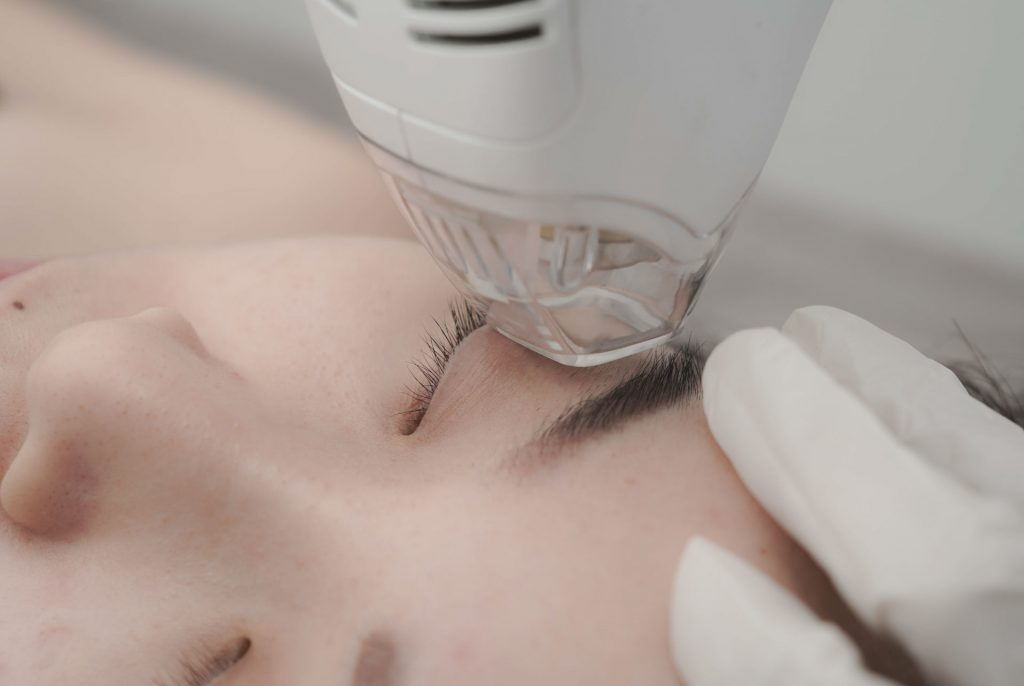 tma-eyelifting-aestheties-treatment-singapore-clinic-oc5-1.jpg
